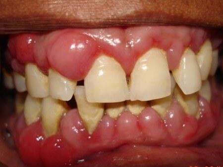 Diş eti hastalığı
