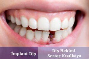 istanbul diş hastanesi
