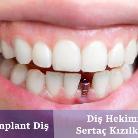 İstanbul implant diş kliniği