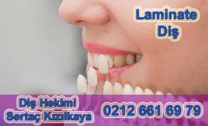 Lamina diş