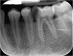 periapikal röntgen