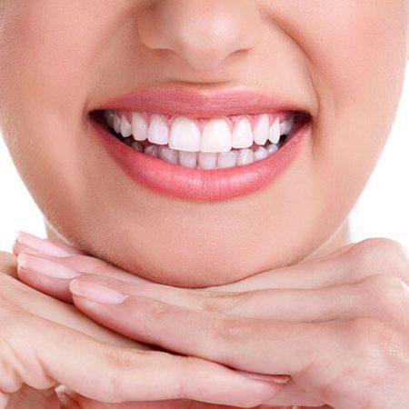Estetik Gülüş Lamina diş