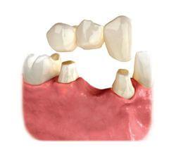 diş köprüsü