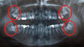röntgende yirmi yaş dişi görüntüsü