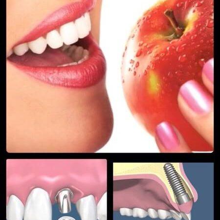 Sağlıklı ve estetik dişler.