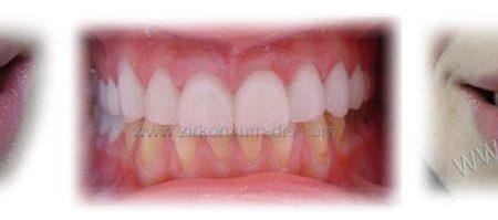 Zirkonyum Diş Kaplama Örnekleri