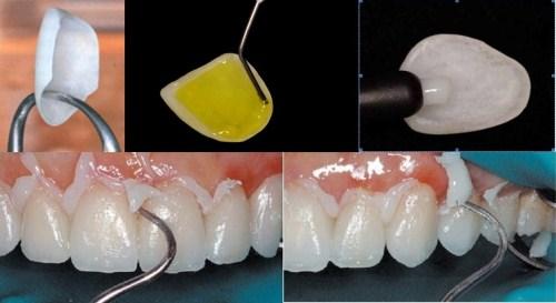 Lamina Diş Yapım aşamaları