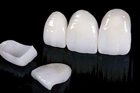 Porselen lamina diş yapımı