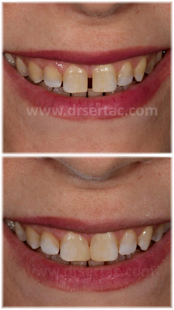 Aralıklı dişlerin kapatılması