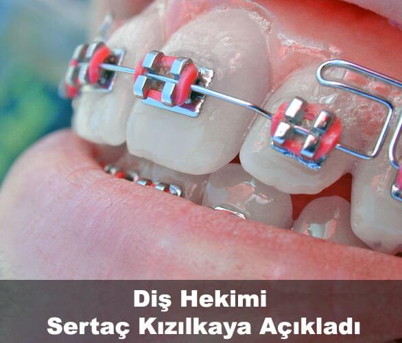 Şeffaf plak ile ortodonti