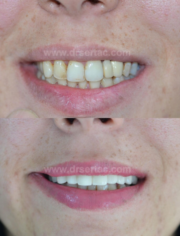 Zirkonyum diş kaplama örnek
