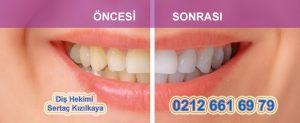 Diş beyazlatma önce sonra resim