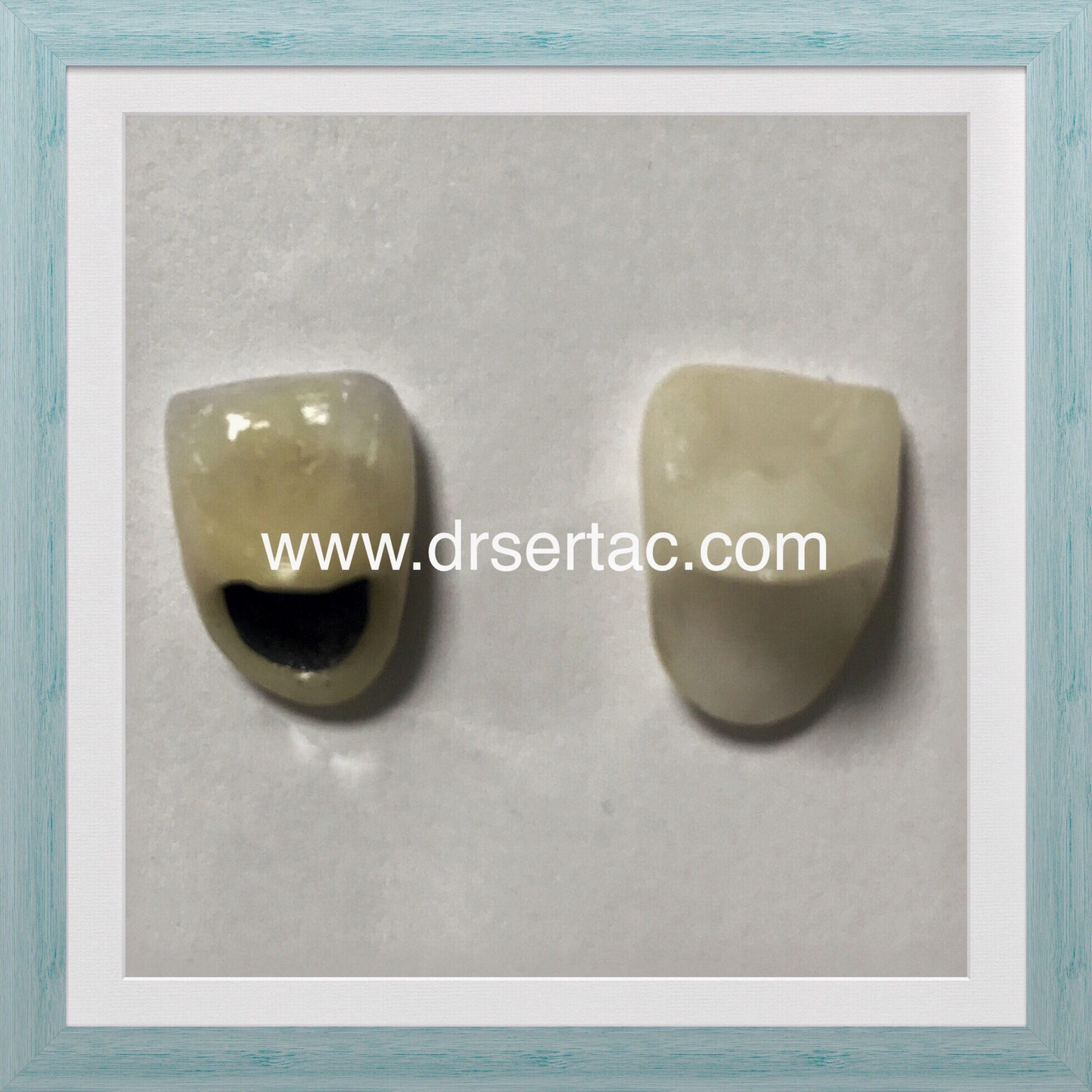 Zirkonyum kaplama ve porselen diş kaplama farkı