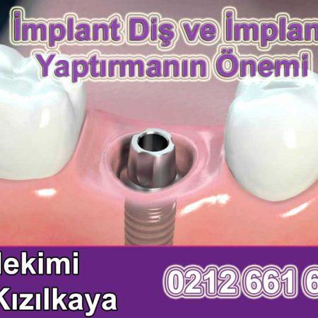 İmplant diş yapım ameliyatı