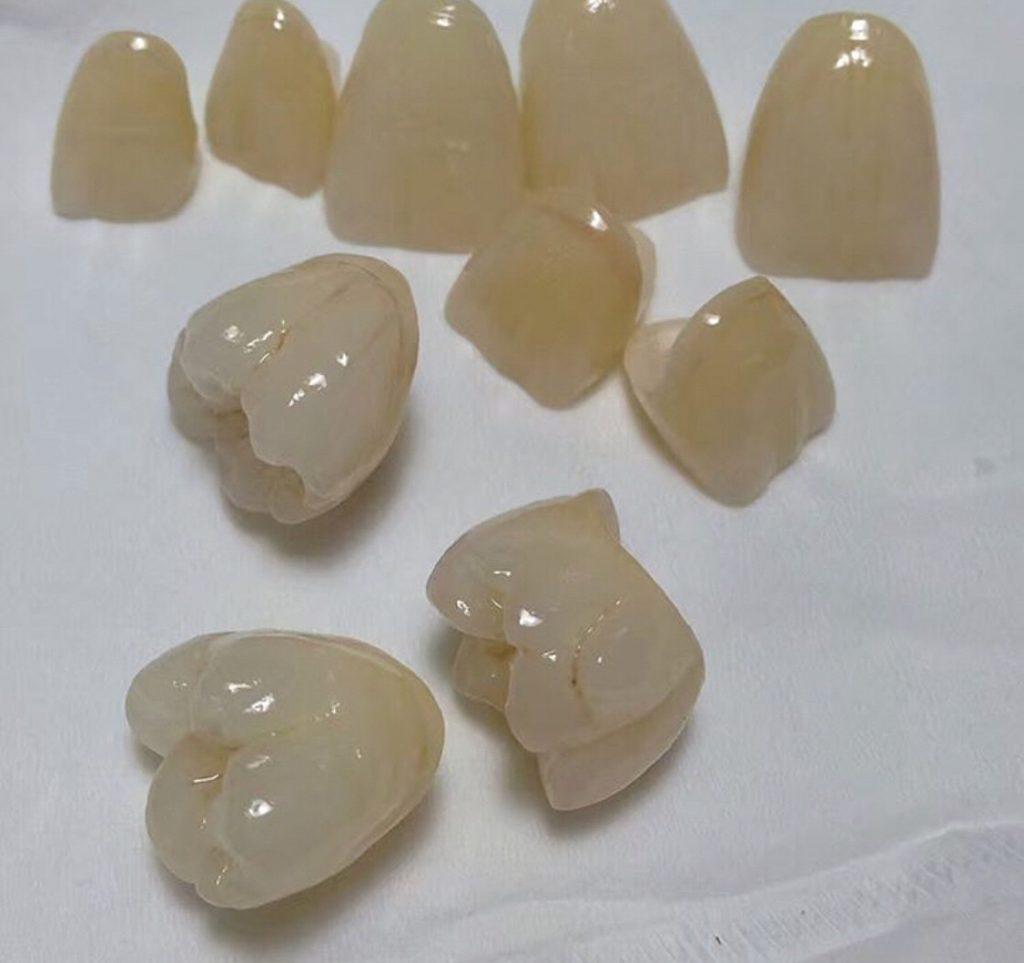 Zirkonyum diş kaplama örneği