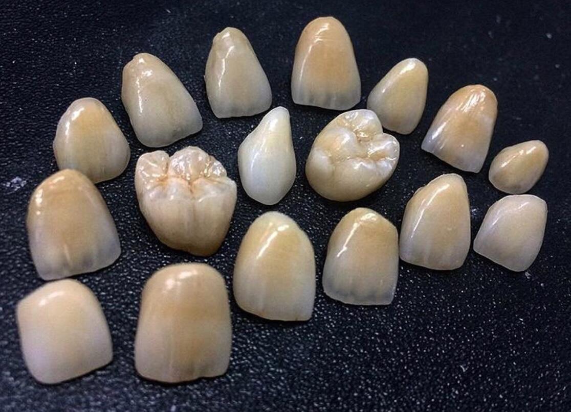 Diş hekimliği estetik zirkonyum diş ve implant tedavileri