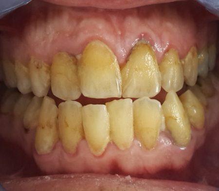 Diş eti hastalığı başlangıç aşaması