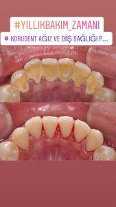 Diş Taşı temizliği önce sonra