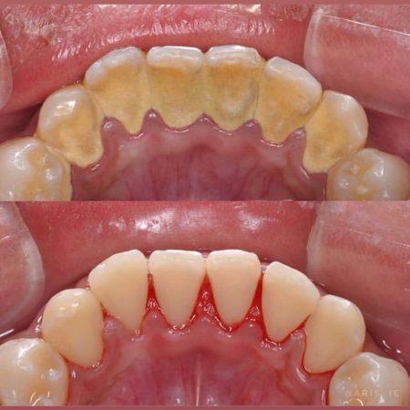 Diş Taşı temizliği ince sonra