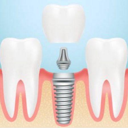 Tek diş implant için diş kesimine gerek yoktur.