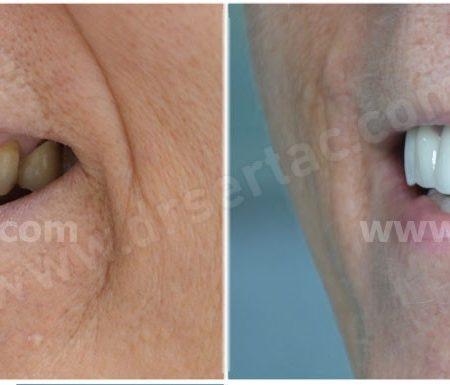 Zirkonyum Diş Kaplama Sonrası