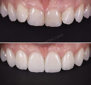 Eğri Ön Dişler İçin Zirkonyum Kaplama Önce ve Sonra