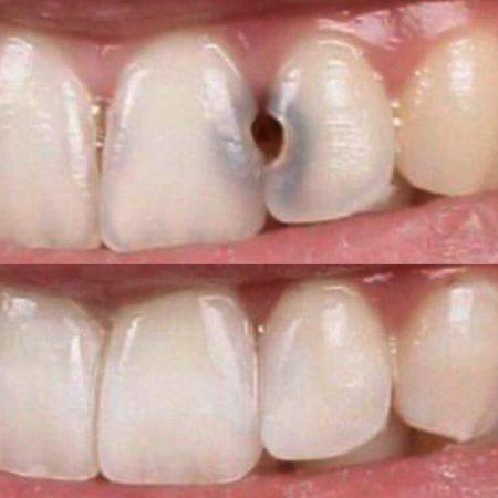 diş çürüğü dolgu öncesi