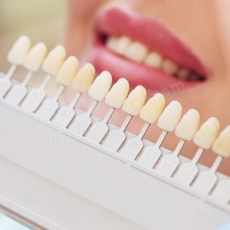 Diş Rengi Seçimi