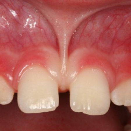Aralıklı diş tedavisi. Laminate veneer, bonding, ortodonti, şeffaf plaklar ile oertodonti