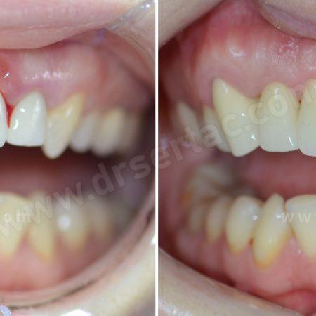 Kötü yapılmış diş kaplama