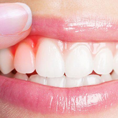 Diş eti hastalığında diş eti anaması ve nedenleri
