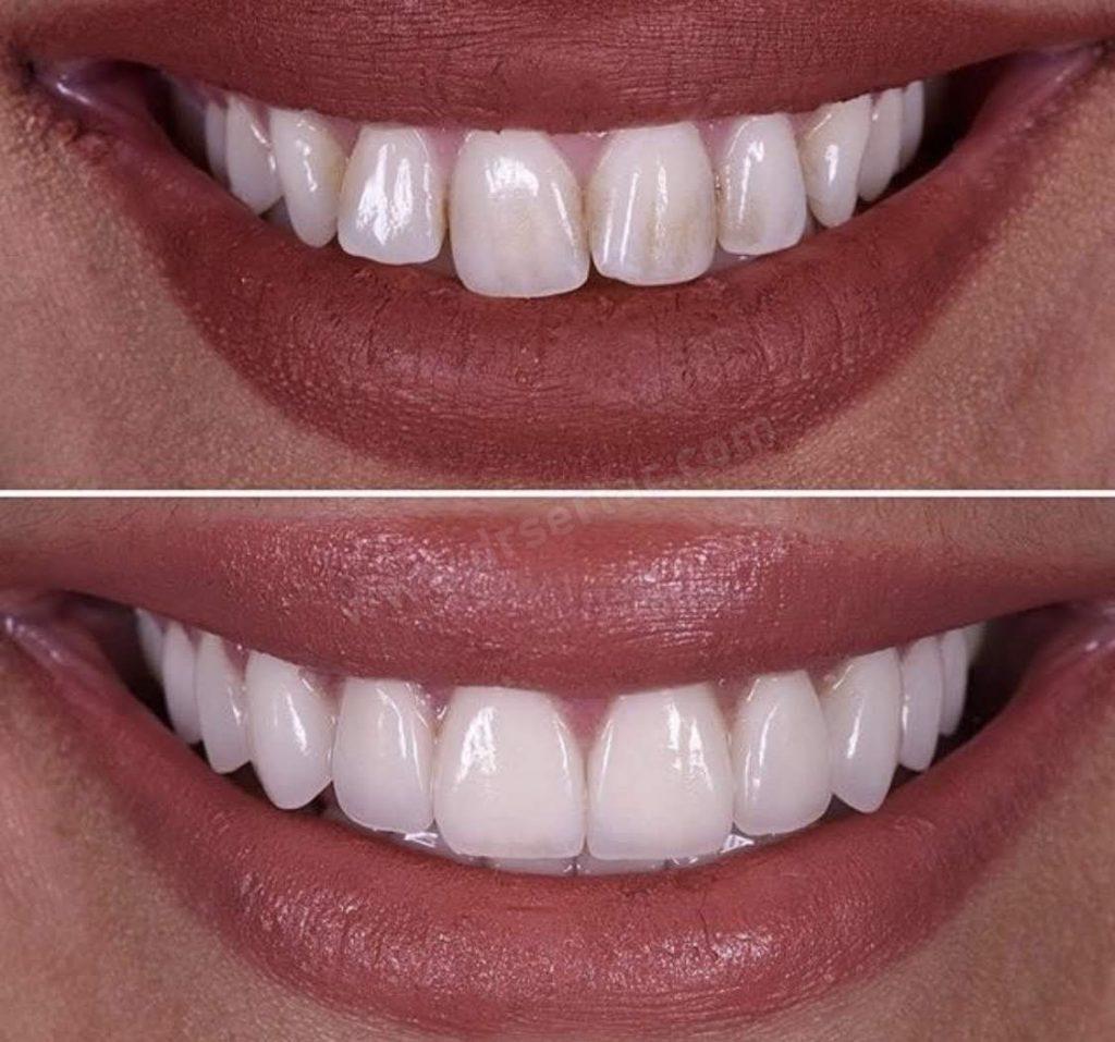estetik diş hekimliğinde zirkonyum diş kaplama