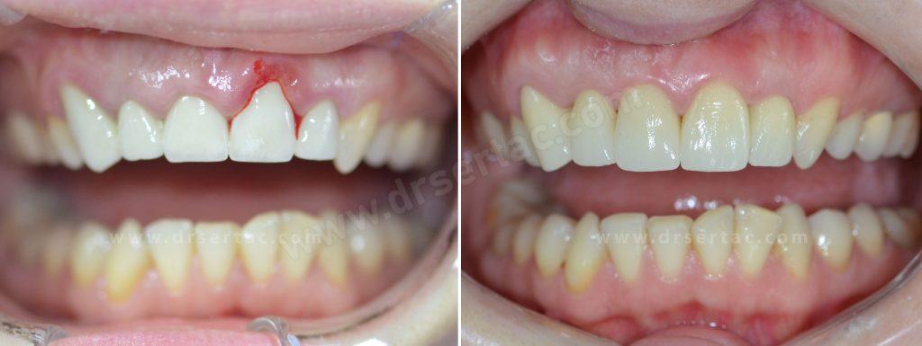 Zirkonyum diş kaplama iyi yapılmalıdır