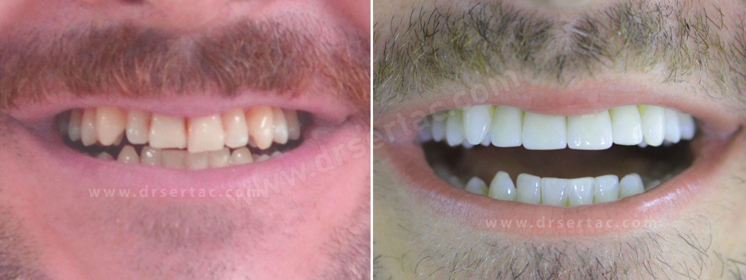 Diş estetiği için laminate veneer